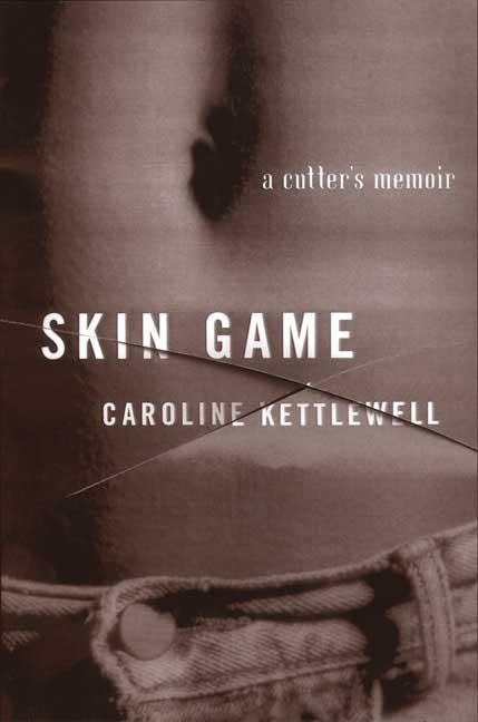 Skin Game By Kettlewell, Caroline